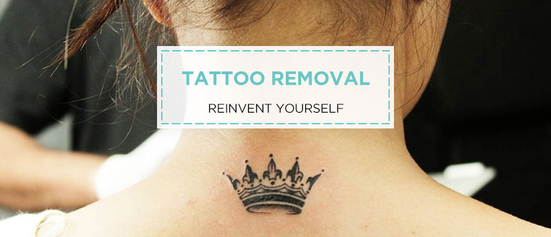 Laser Tattoo Removal at Grace Skincare Clinic
