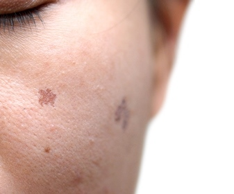 Melasma and Pigmentation Disorders Treatment