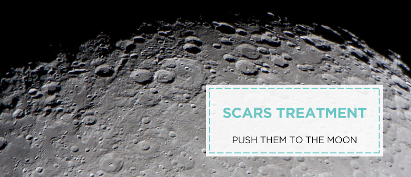 Scar Treatment Push Them To The Moon