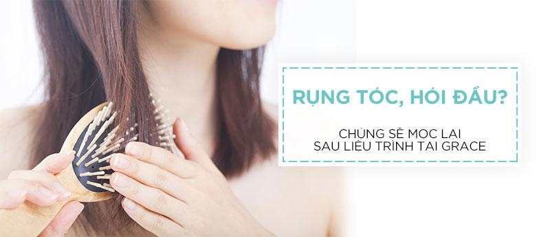 Điều trị rụng tóc hiệu quả tại Grace Skincare Clinic