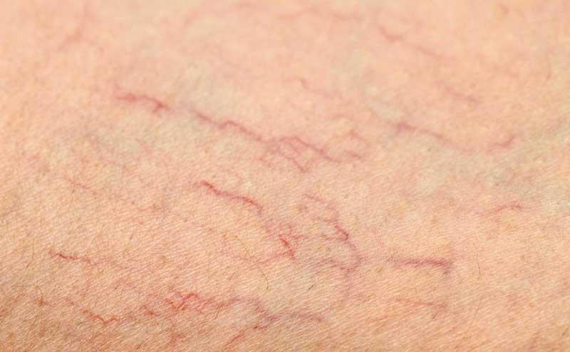 Hiện tượng giãn mạch máu trên da