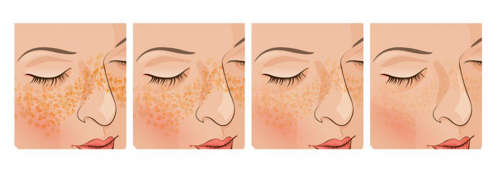 Điều trị nám hiệu quả và dứt điểm tại Grace Skincare Clinic