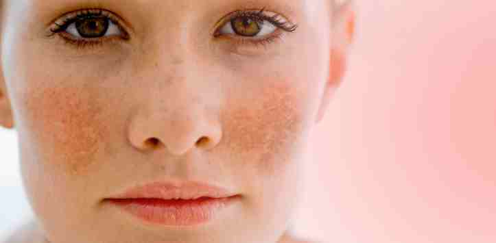 Điều trị nám da bằng laser