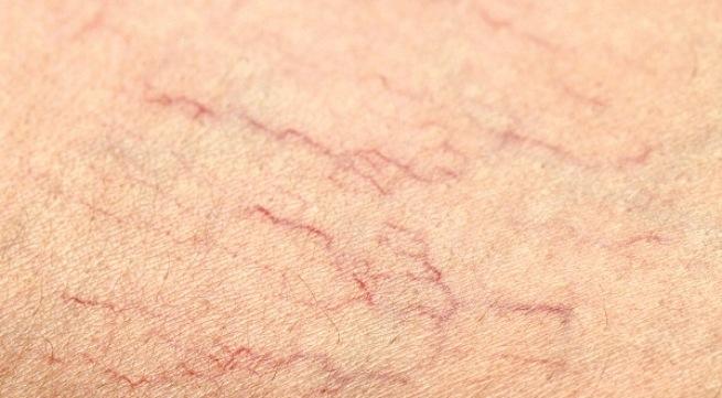 Giãn mao mạch vùng mặt với mạch máu nhỏ li ti