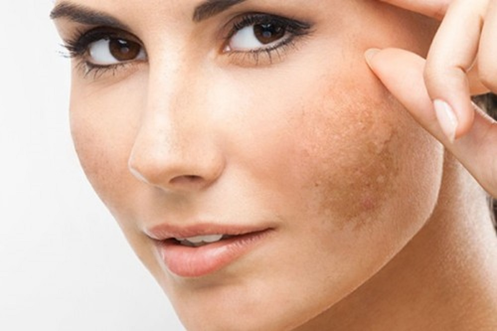 Melasma - deep chemical peel