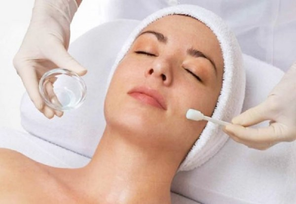light chemical peel