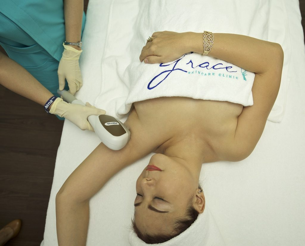 Dye-PL hair removal at Grace Skincare Clinic performed by trained nurse
