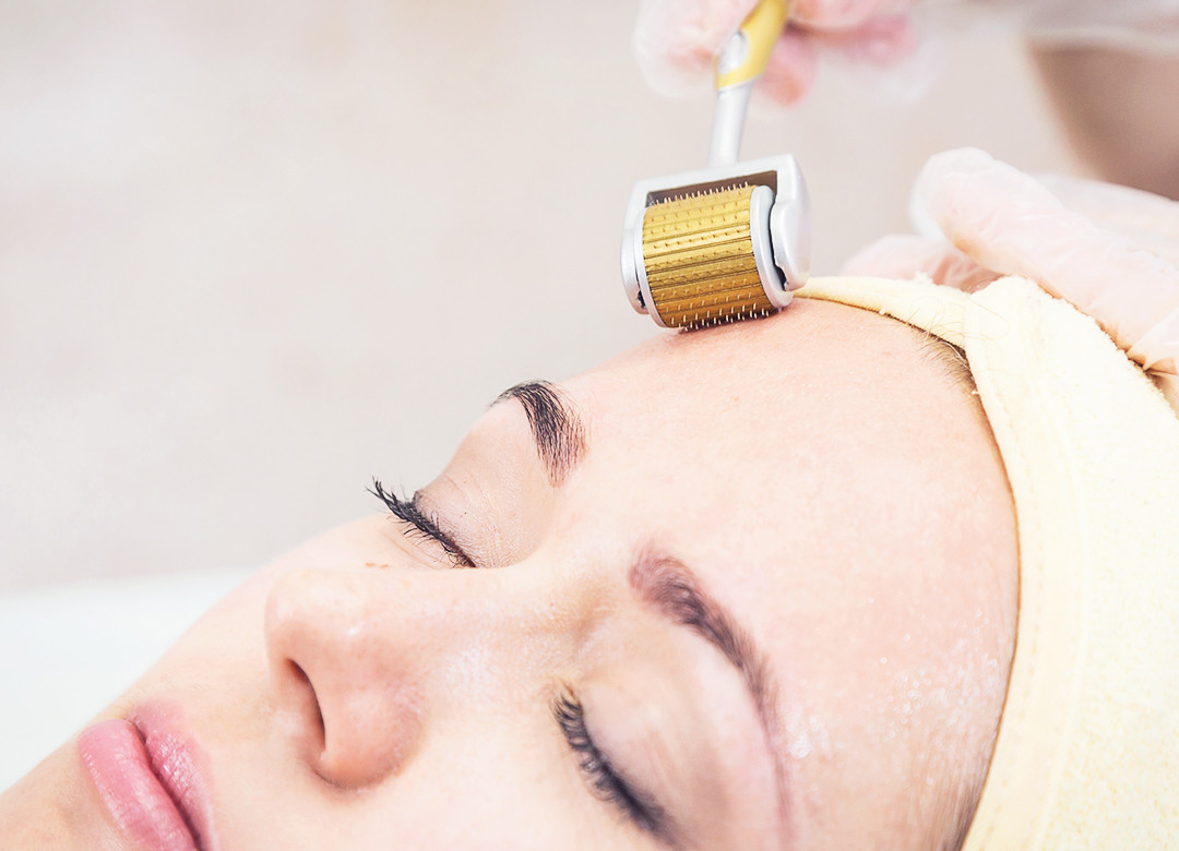 PRP Microneedling for Skin Rejuvenation at Grace Skincare Clinic