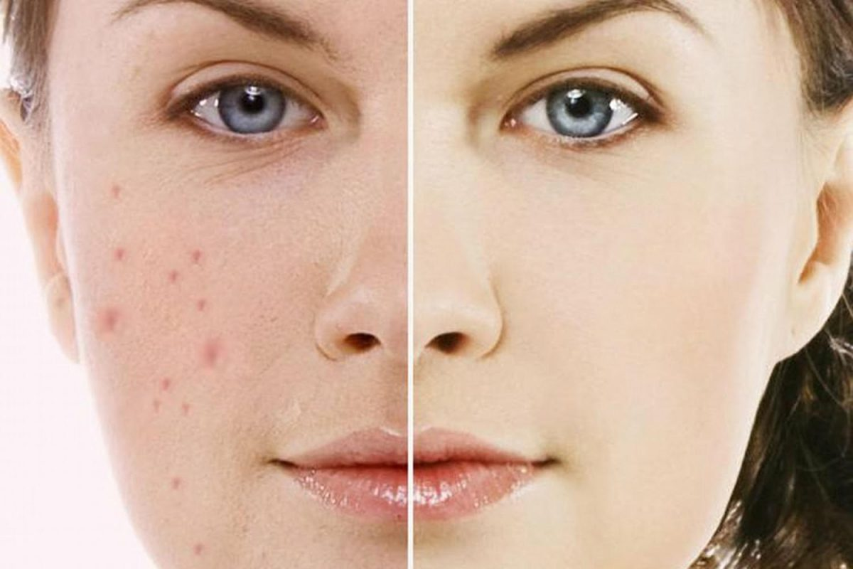 Post-Inflammatory Hyperpigmentation treatment