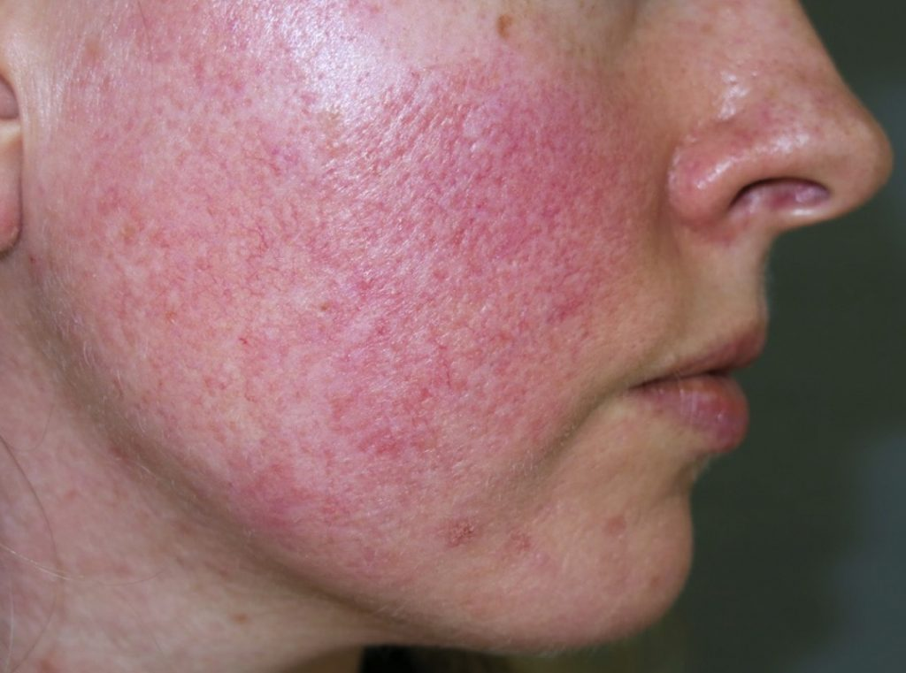 Điều trị giãn mao mạch mặt tại Grace Skincare Clinic