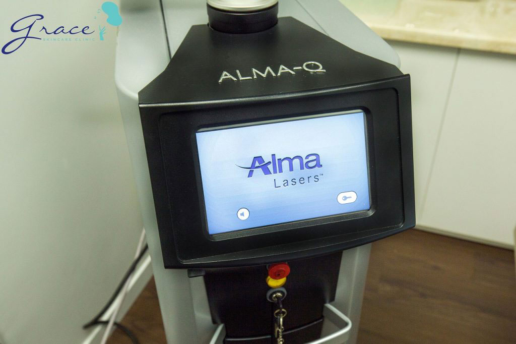 Điều trị giãn mao mạch vùng mặt với laser Alma-Q