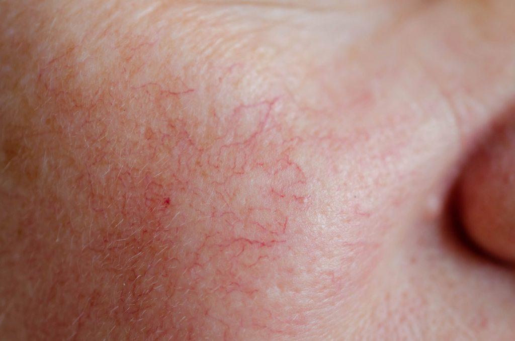 Trị da mặt mỏng nổi gân máu