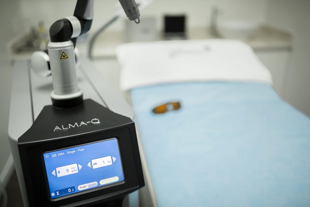 Xóa xăm với Alma Q Laser tại Grace Skincare Clinic