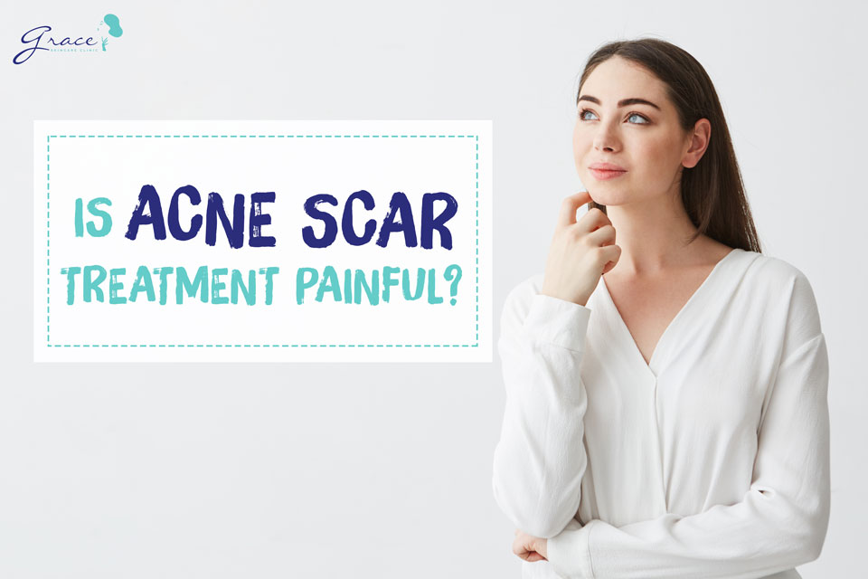 Is Acne Scar Treatment Painful