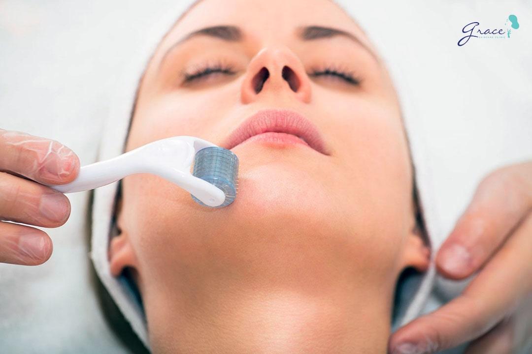 phương pháp lăn kim điều trị sẹo thủy đậu