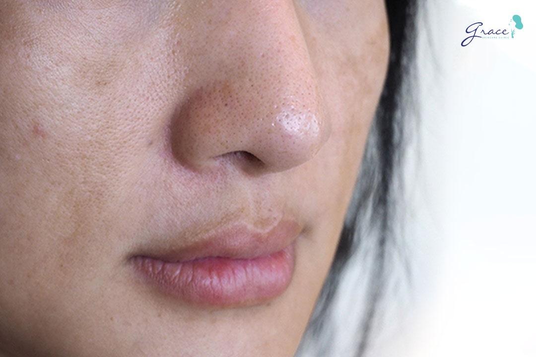 vết nám trên da mặt
